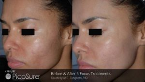 Discovery Pico Laser Treatment