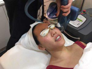 Medlite C6 Laser Facial
