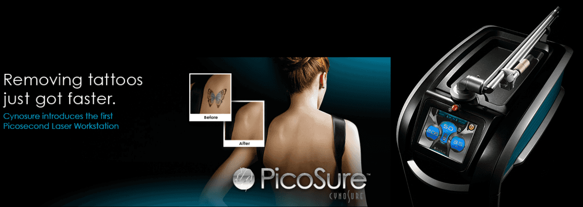 Cynosure Picosure Laser