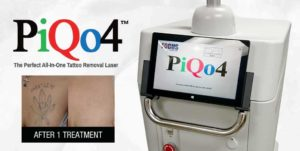 What is PiQo4 laser