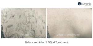 PiQo4 treats a wide selection of pigment colours and its versatile energy matrix ensures effective shattering of pigment residue.