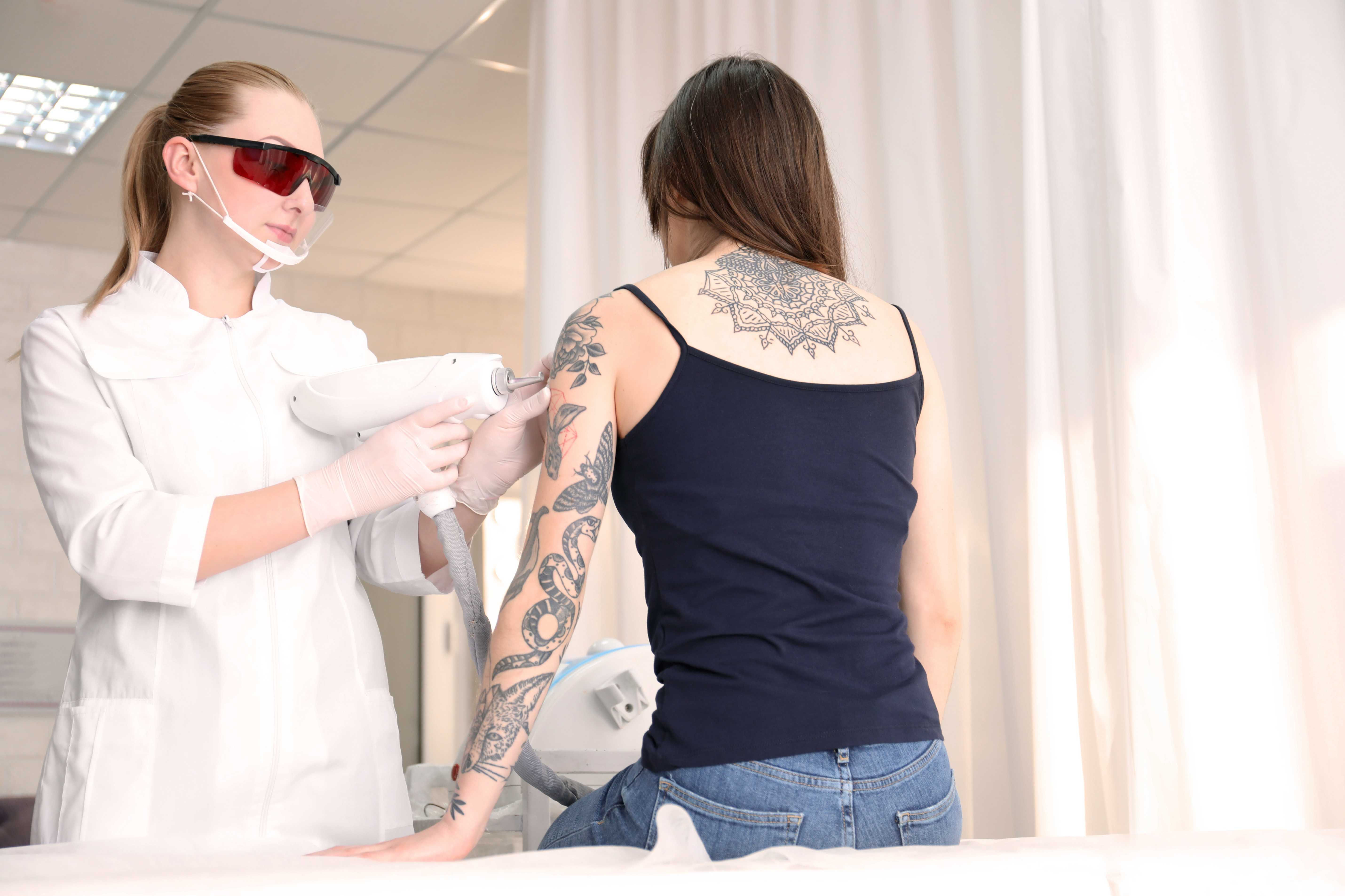 tattoo-removal-laser machine