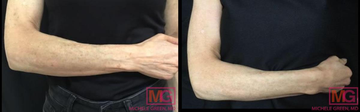 LS-59-alextrivantage-dark-spots-arm-3-weeks-A-MGwatermark