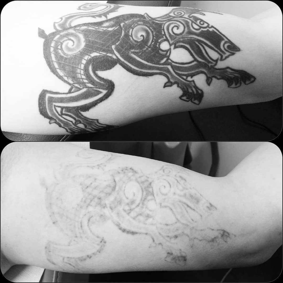 cutera-enlighten-before-after-1