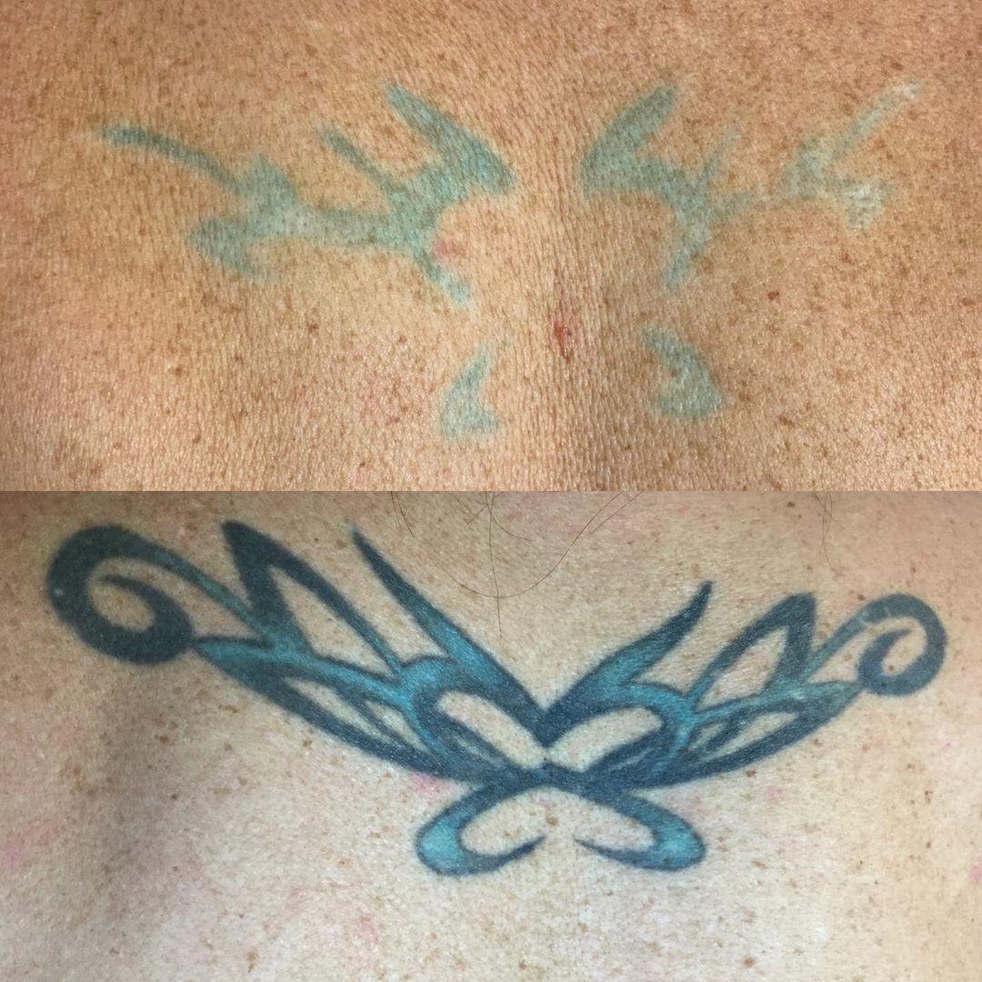 cutera-enlighten-before-after-12